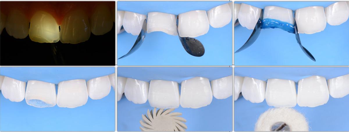 currarino-casi-clinici-ricostruzione-estetica-01-03