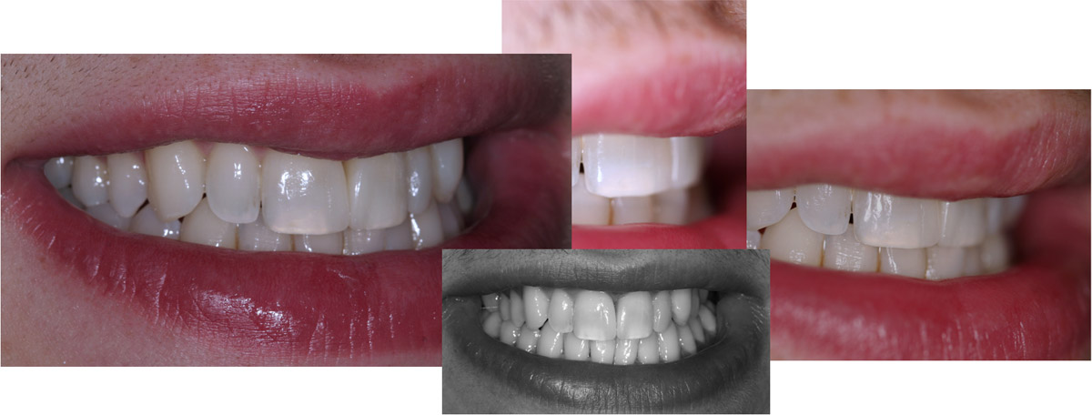 currarrino-casi-clinici-faccette-02-06
