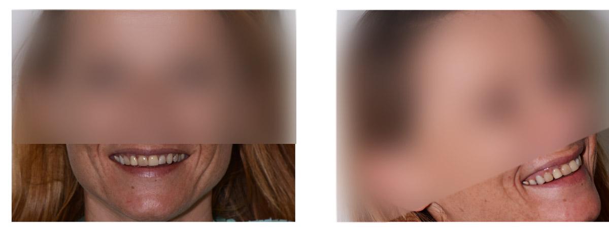 currarrino-casi-clinici-smile-design-01-01