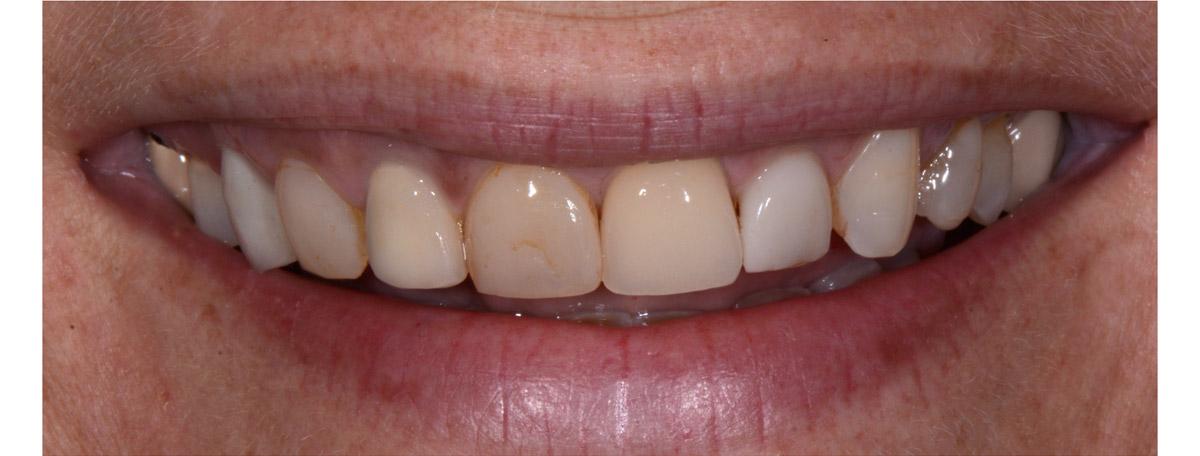 currarrino-casi-clinici-smile-design-01-02