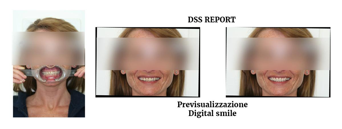 currarrino-casi-clinici-smile-design-01-03