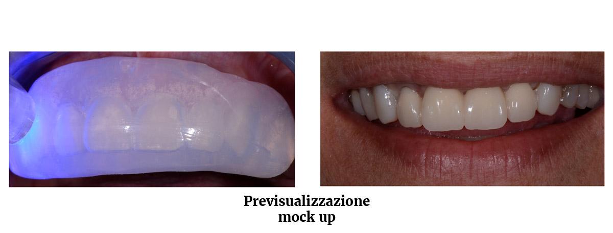 currarrino-casi-clinici-smile-design-01-04