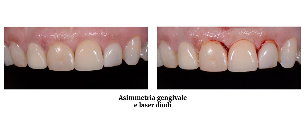 currarrino-casi-clinici-smile-design-01-06