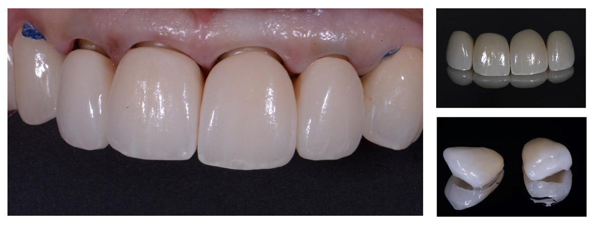 currarrino-casi-clinici-smile-design-01-07