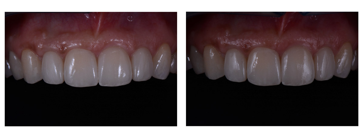 currarrino-casi-clinici-smile-design-01-08