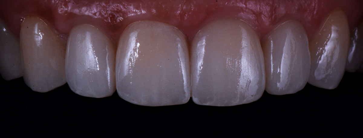 currarrino-casi-clinici-smile-design-01-09