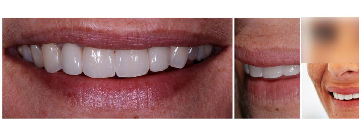 currarrino-casi-clinici-smile-design-01-11