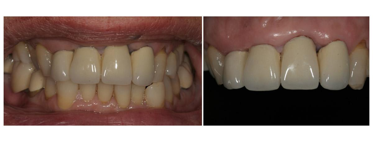 currarrino-casi-clinici-smile-design-02-01
