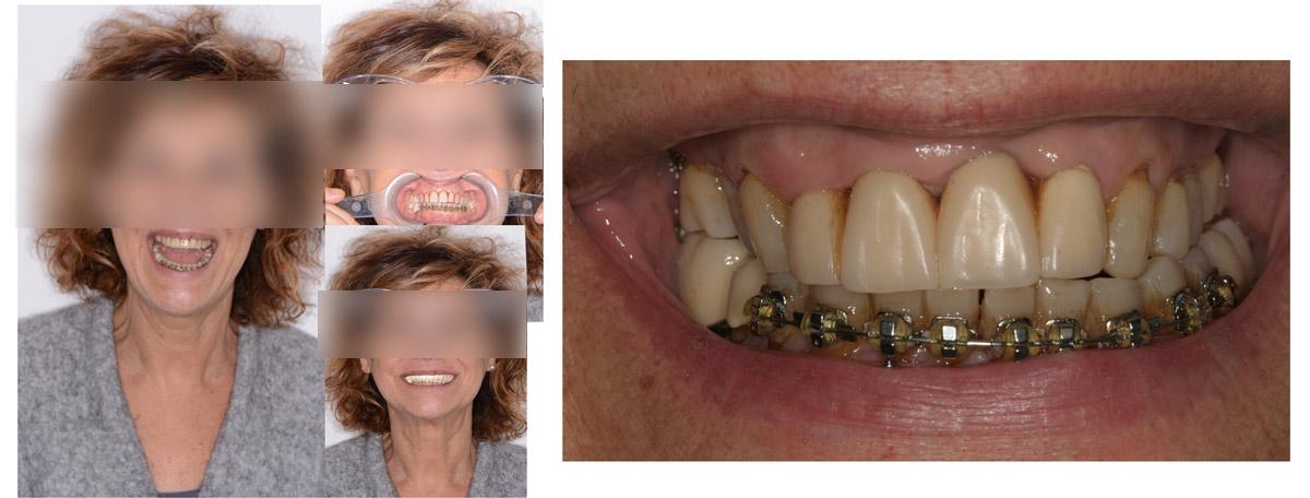 currarrino-casi-clinici-smile-design-02-02
