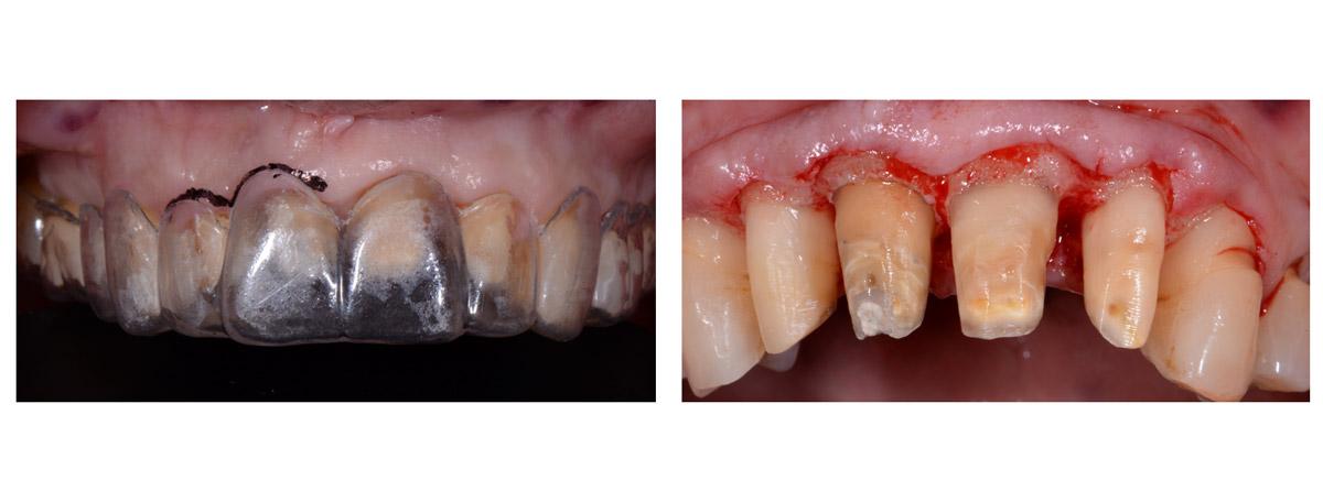 currarrino-casi-clinici-smile-design-02-03
