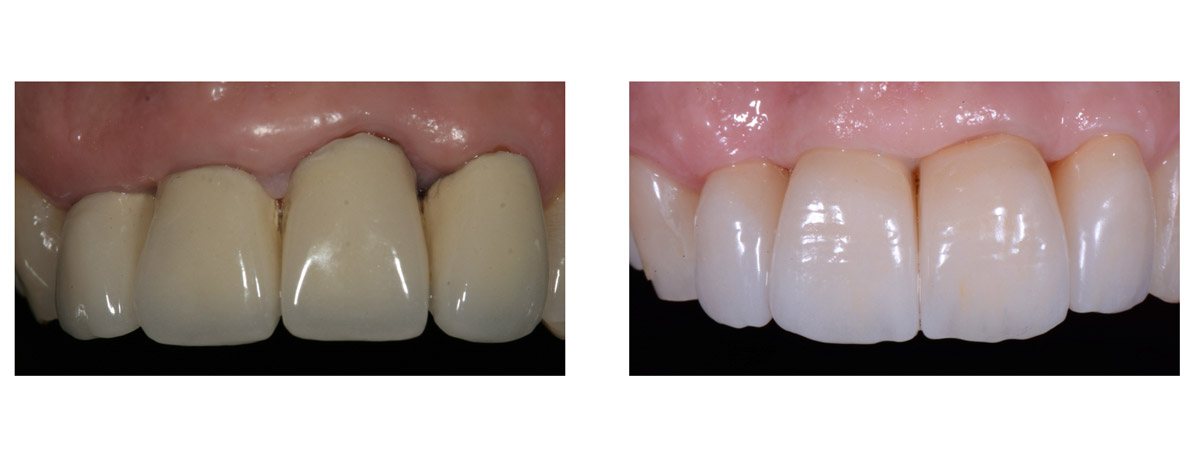 currarrino-casi-clinici-smile-design-02-05