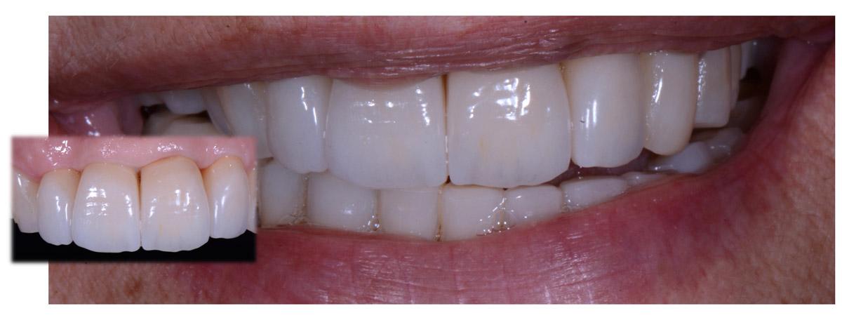 currarrino-casi-clinici-smile-design-02-07