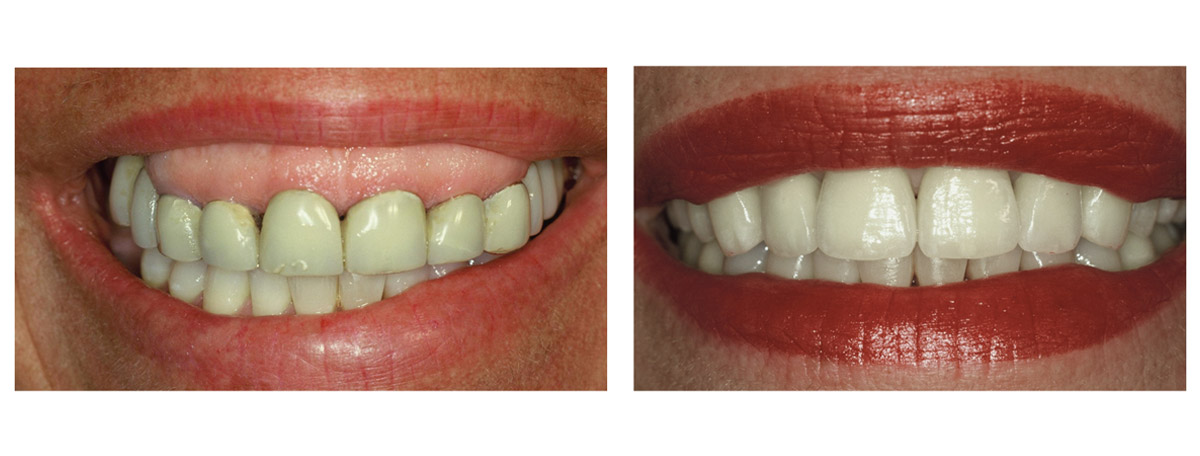 currarrino-casi-clinici-smile-design-03-01