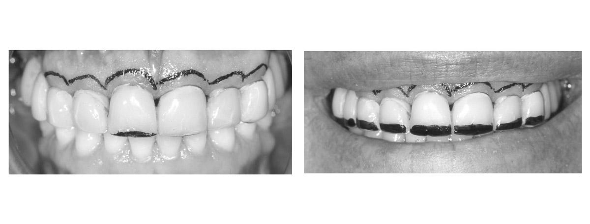 currarrino-casi-clinici-smile-design-03-03