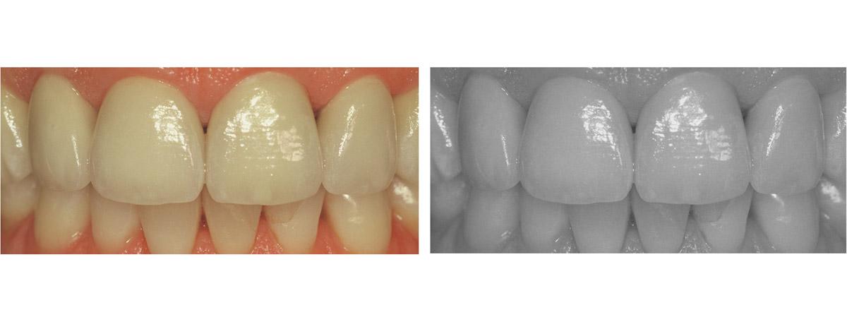 currarrino-casi-clinici-smile-design-03-07
