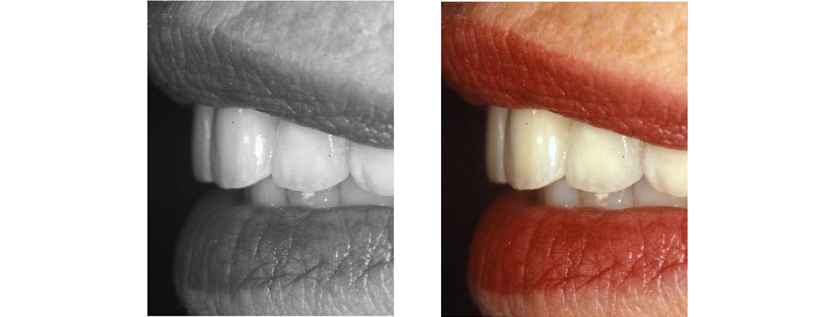 currarrino-casi-clinici-smile-design-03-09