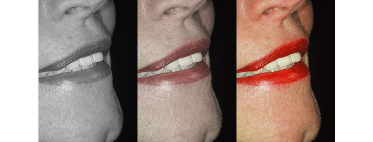 currarrino-casi-clinici-smile-design-03-10