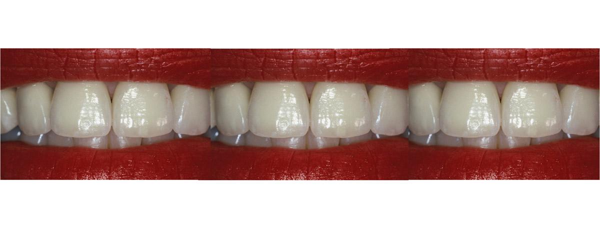 currarrino-casi-clinici-smile-design-03-11