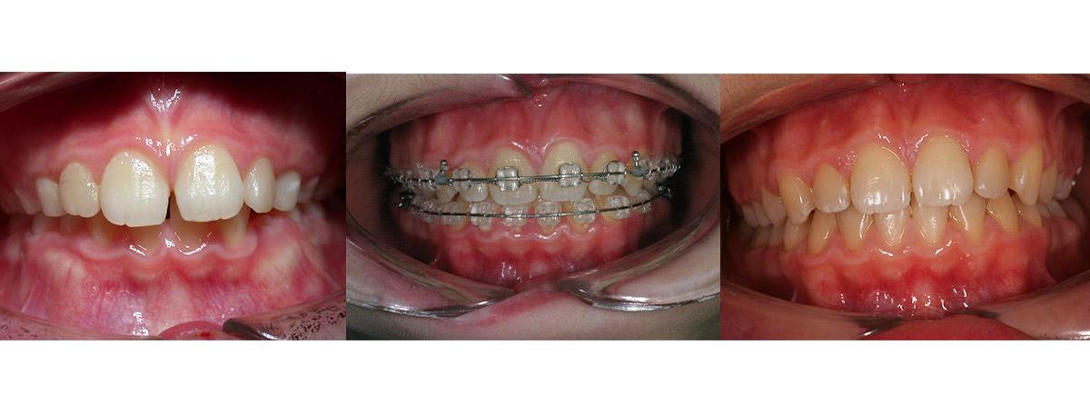 currarrino-casi-clinici-ortodonzia-05