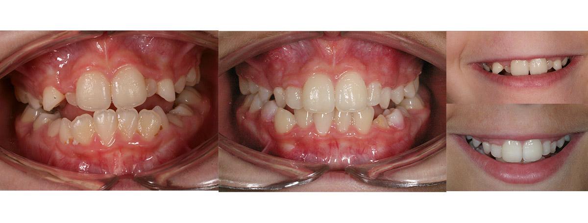 currarrino-casi-clinici-ortodonzia-06