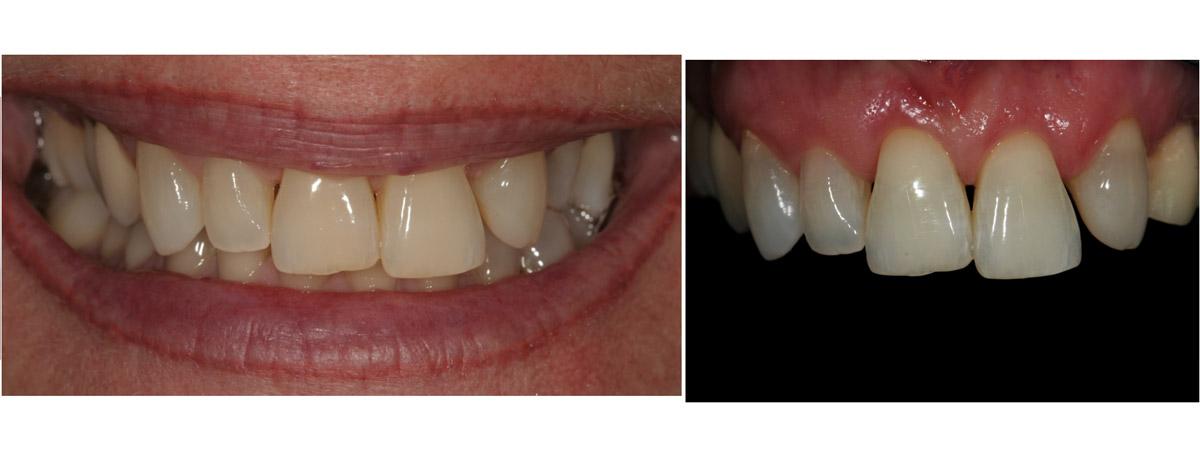 currarrino-casi-clinici-smile-design-04-01