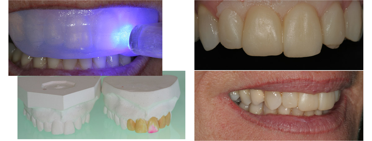 currarrino-casi-clinici-smile-design-04-02