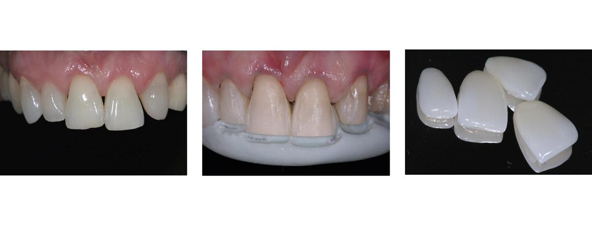 currarrino-casi-clinici-smile-design-04-03