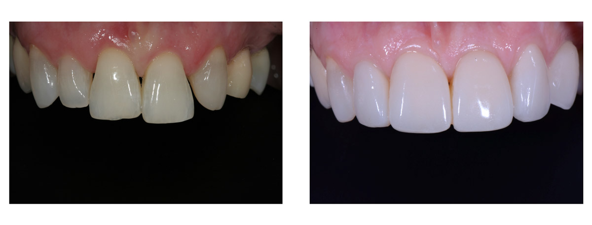currarrino-casi-clinici-smile-design-04-04