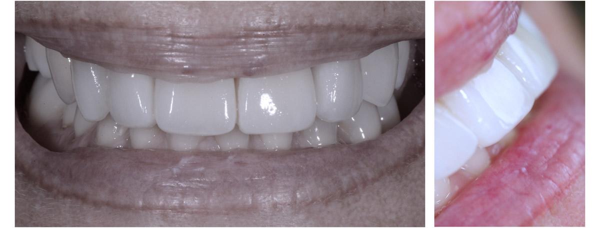 currarrino-casi-clinici-smile-design-04-05