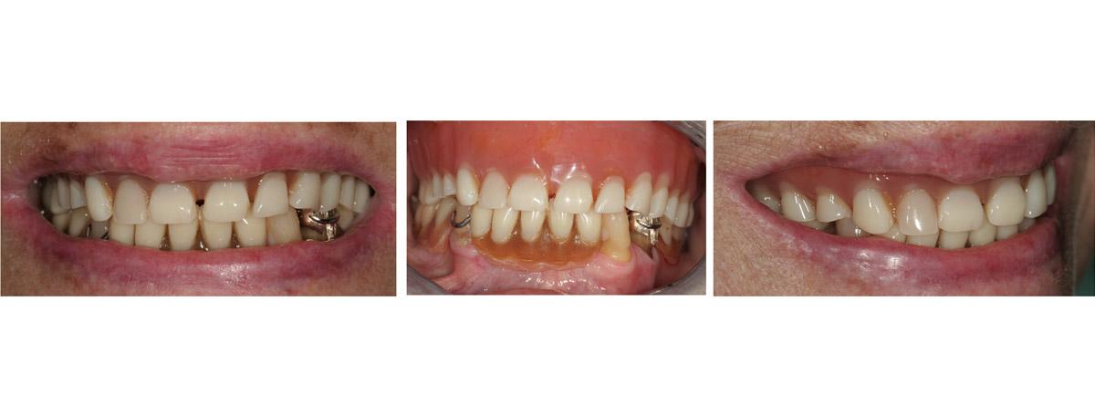 currarrino-casi-clinici-trattamento-protesi-mobile-01-01