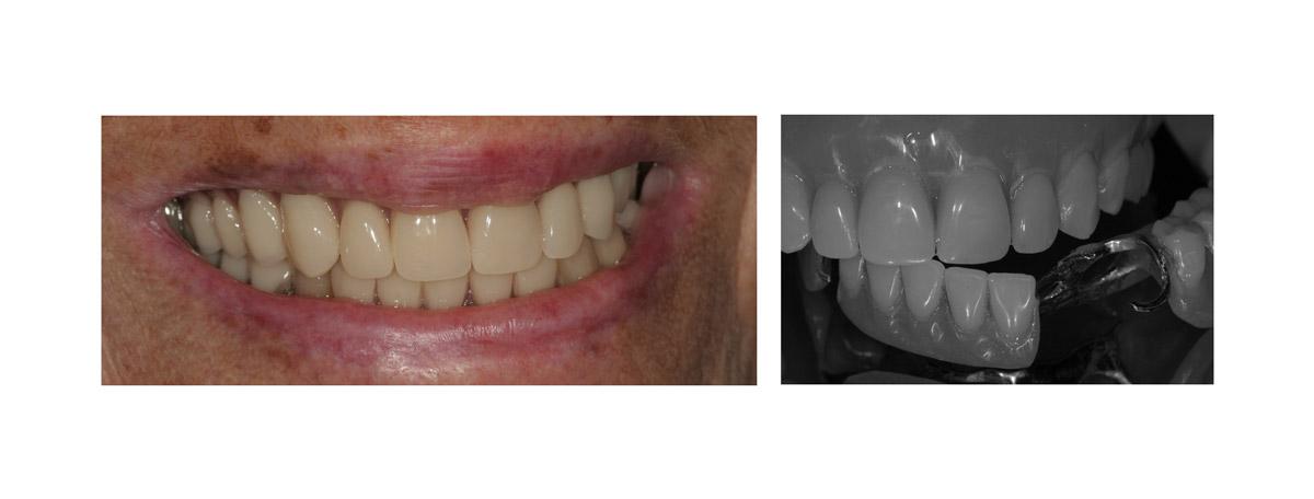 currarrino-casi-clinici-trattamento-protesi-mobile-01-02