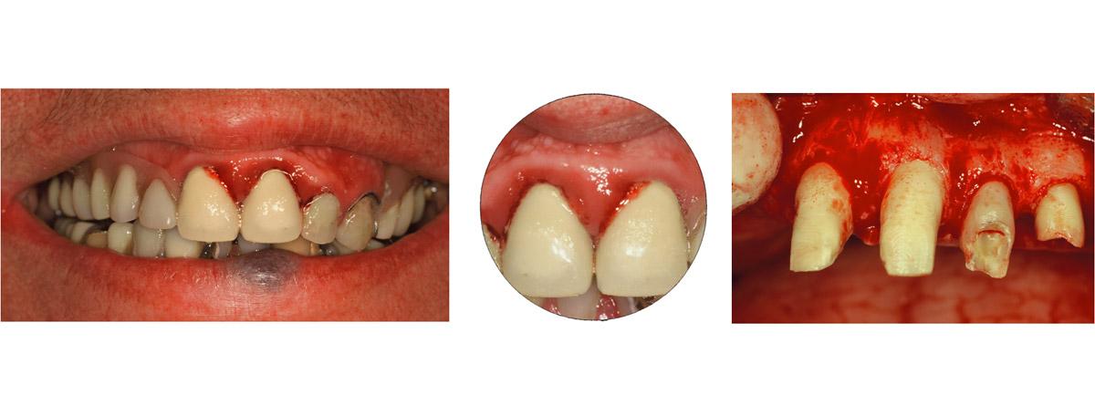 currarrino-casi-clinici-trattamento-protesi-mobile-02-01