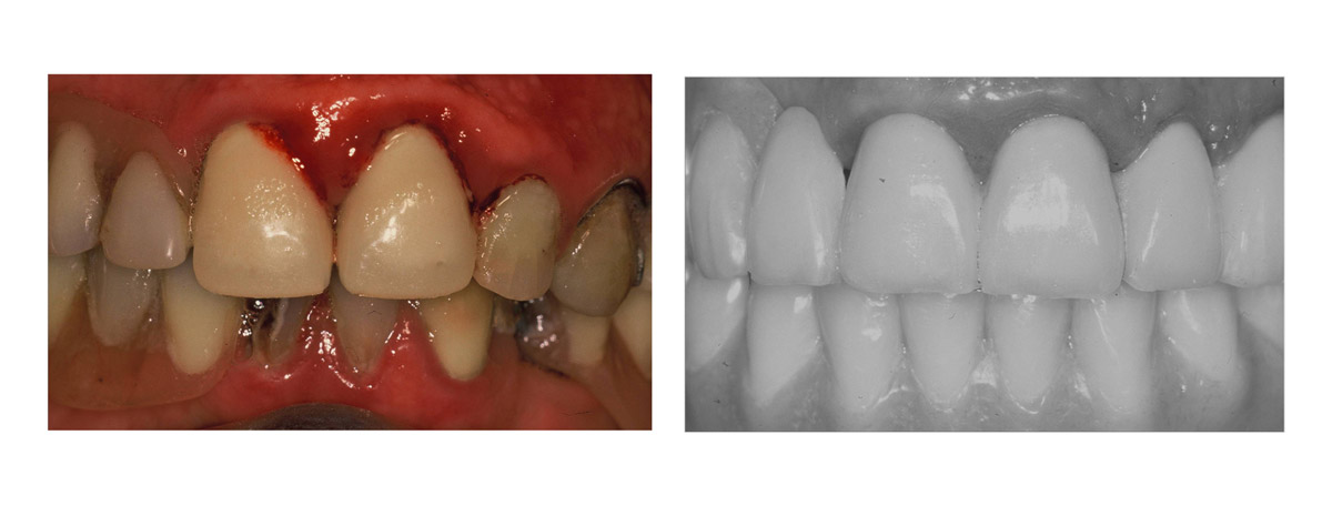 currarrino-casi-clinici-trattamento-protesi-mobile-02-03