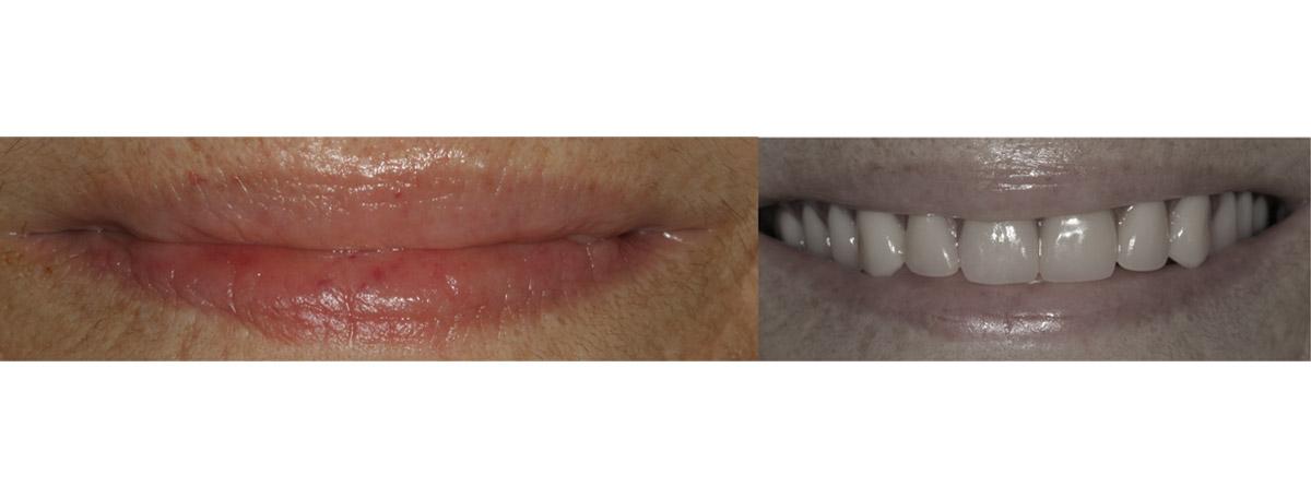 currarrino-casi-clinici-trattamento-protesi-mobile-03-03
