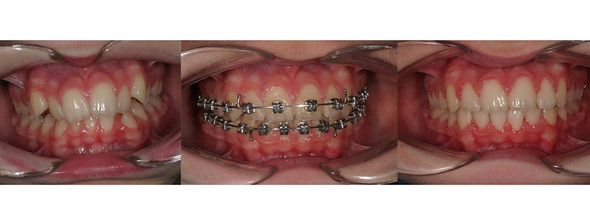 ortodonzia-caso-1
