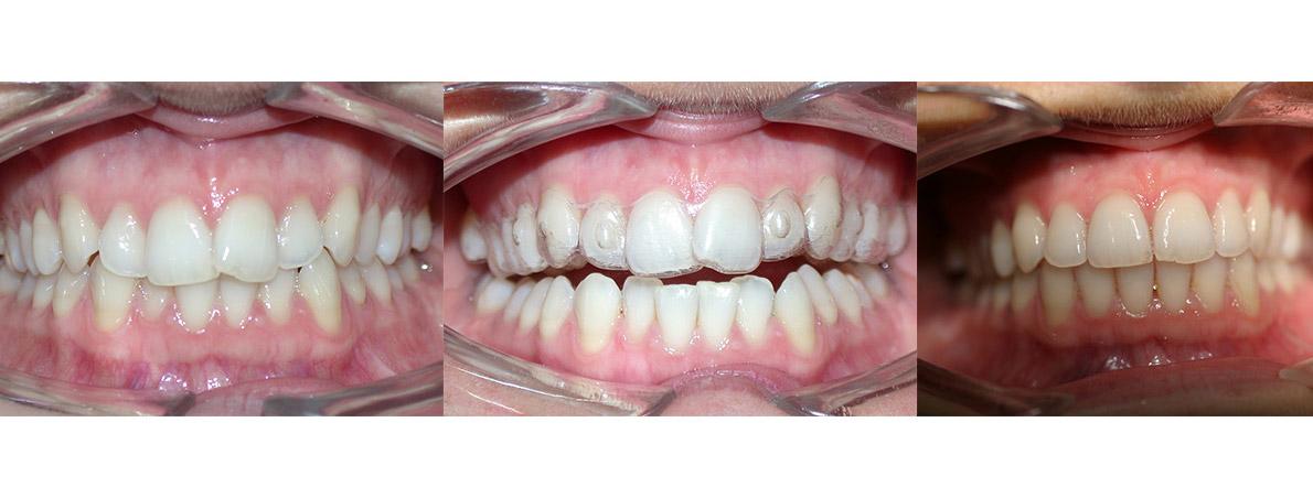 ortodonzia-caso-2