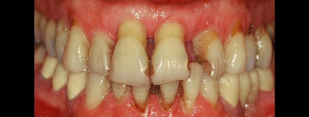 currarino-casi-clinici-trattamento-paradontale-04-01