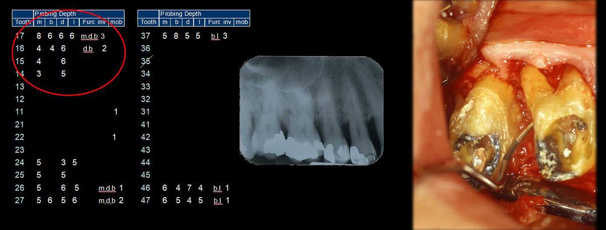 currarino-casi-clinici-trattamento-paradontale-04-04