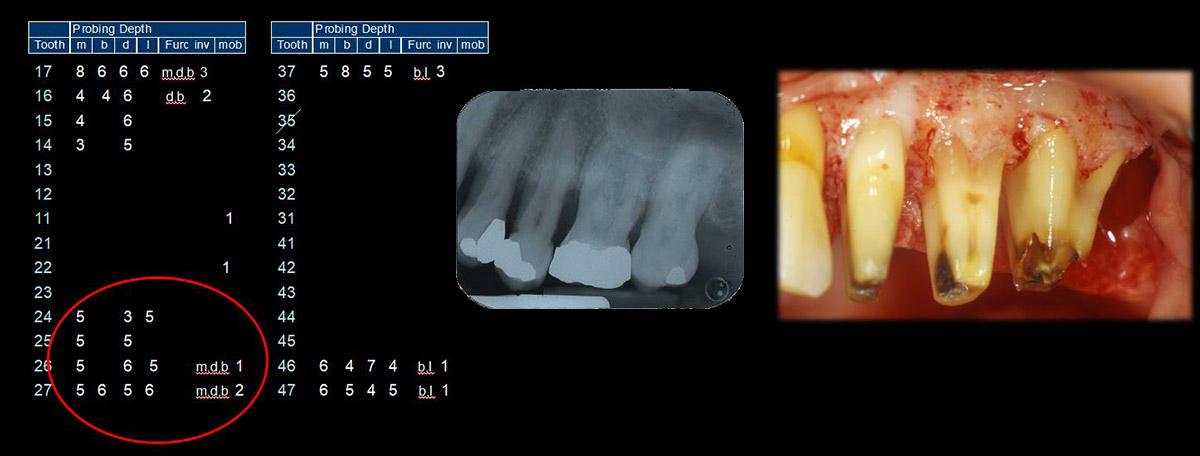 currarino-casi-clinici-trattamento-paradontale-04-05