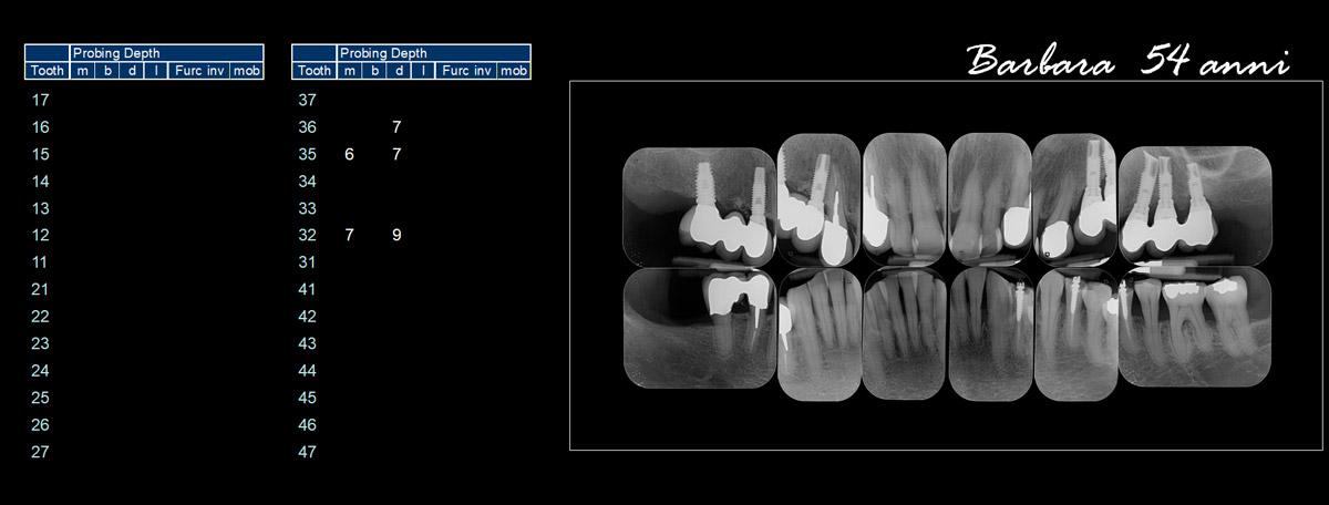 currarrino-casi-clinici-trattamento-paradontale-03-02