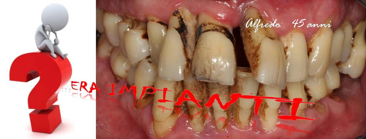 currarino-casi-clinici-trattamento-paradontale-05-02