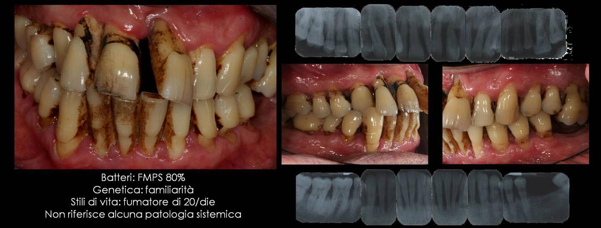 currarino-casi-clinici-trattamento-paradontale-05-03