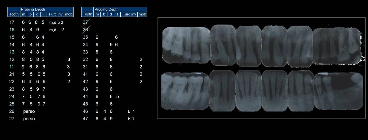 currarino-casi-clinici-trattamento-paradontale-05-04