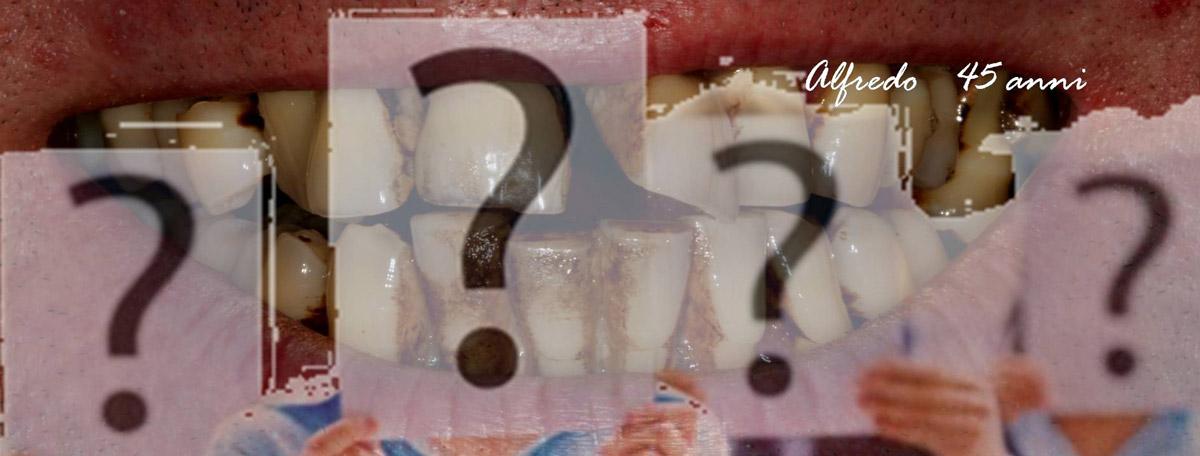 currarino-casi-clinici-trattamento-paradontale-05-05
