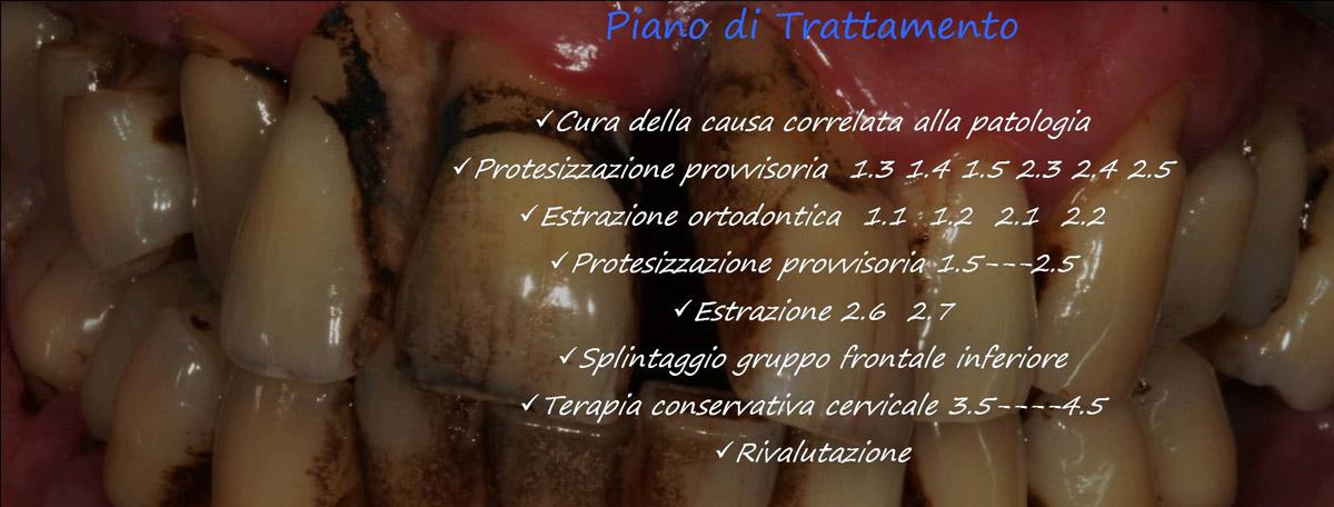 currarino-casi-clinici-trattamento-paradontale-05-07