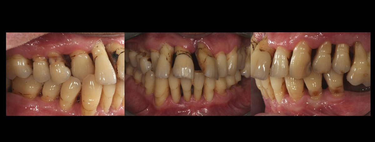 currarino-casi-clinici-trattamento-paradontale-05-09