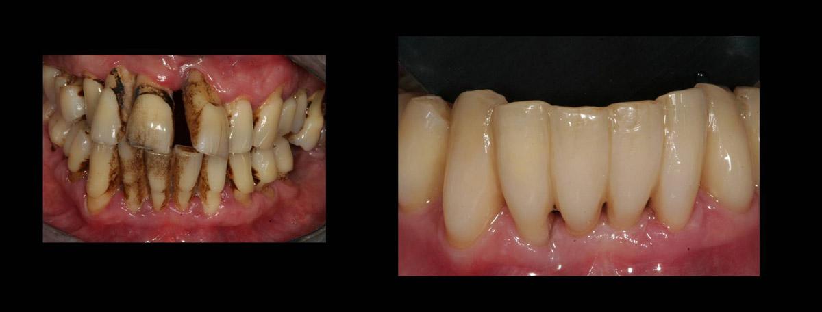 currarino-casi-clinici-trattamento-paradontale-05-12