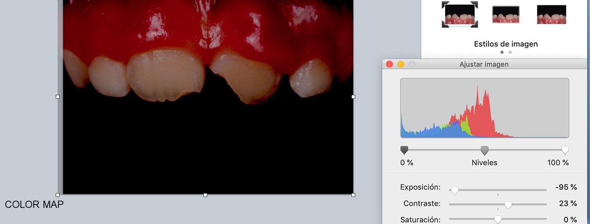 currarino-casi-clinici-ricostruzione-estetica-04-02