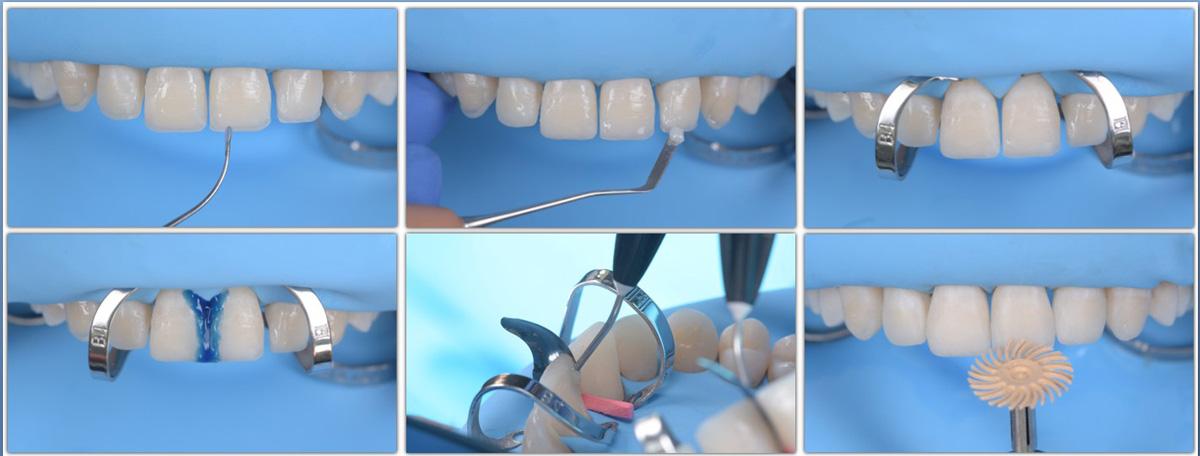 currarino-casi-clinici-ricostruzione-estetica-05-04